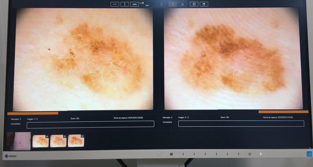 Evolución de una lesión pigmentada cuyo diagnóstico precoz resultó ser un melanoma in situ gracias al diagnóstico precoz con la técnica de epiluminiscenc