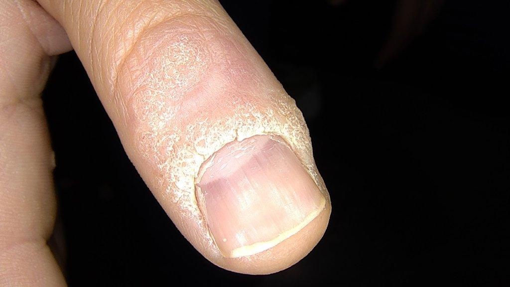 Verruga primer dedo