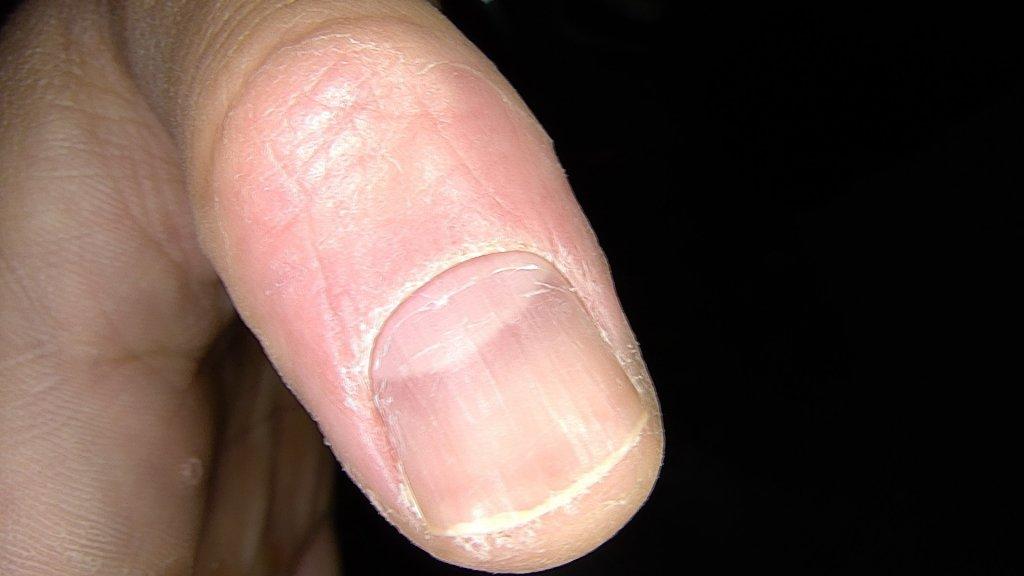 verrugas 15 días tras cantaridina