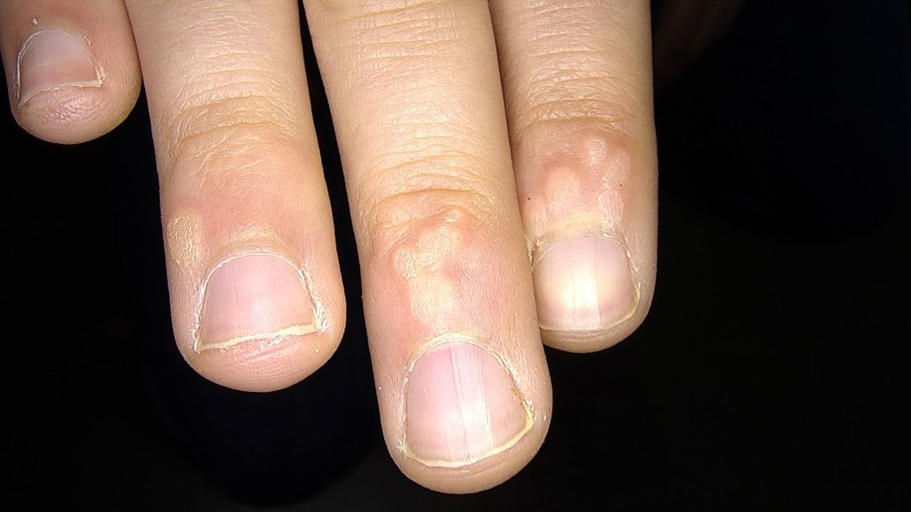 verrugas manos
