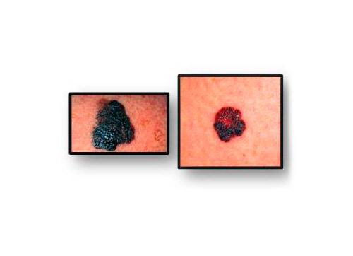 690343-centro-dermatologico-dr-galvan-perez-del-pulgar-problemas-de-piel-2