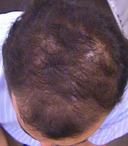 Enfermedades del pelo