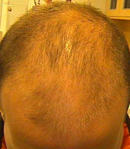 Emfermedades del pelo