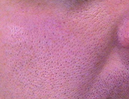 ratamiento dermatologico