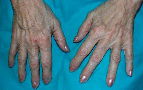 eliminación de lesiones pigmentadas