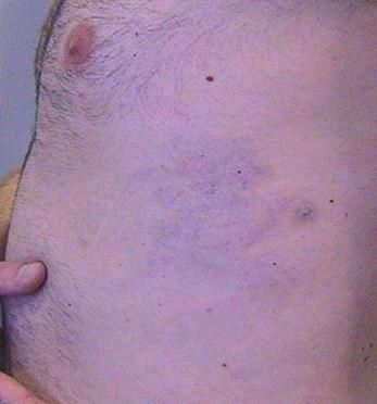 Eliminación de tatuaje