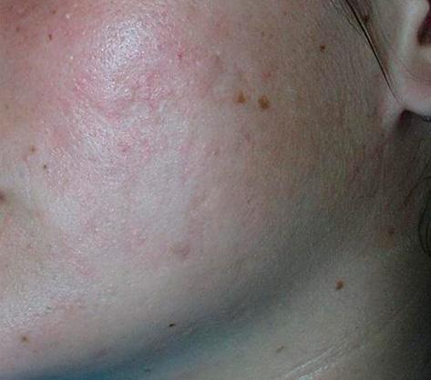 tratamiento de cicatrices del acné
